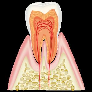 むし歯治療CO