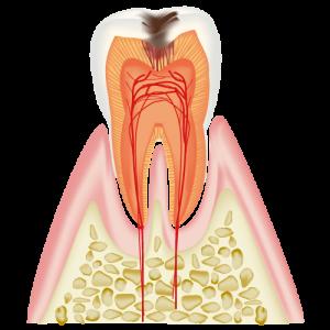 むし歯治療C2