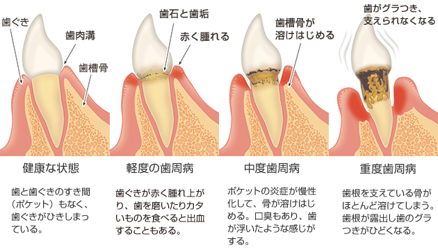 歯周病の進行