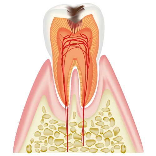 象牙質に達したむし歯