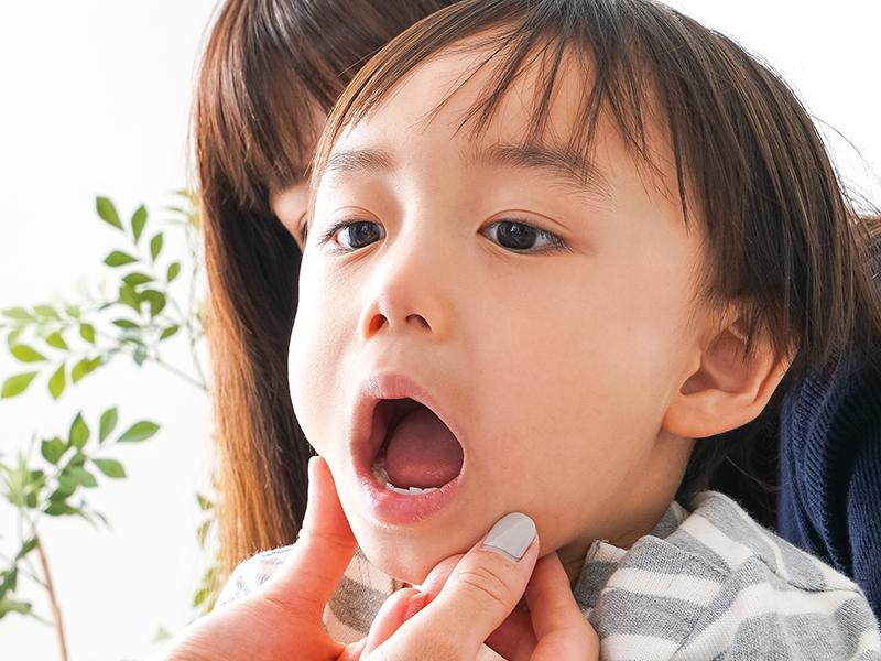 乳歯がむし歯になりやすい理由