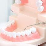 歯周病治療eye